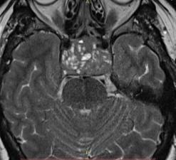 Хирургическое лечение аденомы гипофиза 4 Херсон