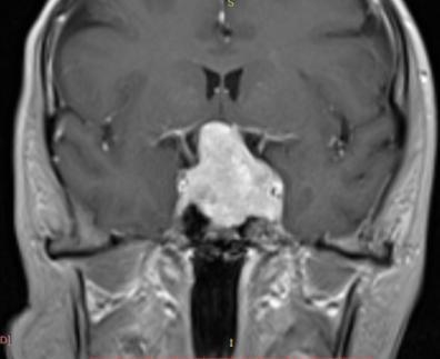 Хирургическое лечение аденомы гипофиза 7 Херсон