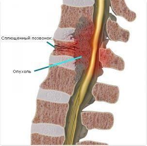 Хирургическое удаление опухолей позвоночника 1 Херсон