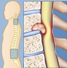 Хирургическое удаление опухолей позвоночника 2 Херсон