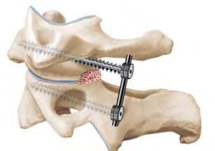Оперативное лечение переломов позвоночника 1 Херсон