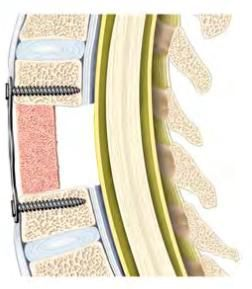 Оперативное лечение переломов позвоночника 5 Херсон