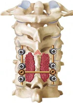 Оперативное лечение переломов позвоночника 6 Херсон