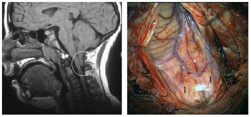 Аномалии развития нервной системы 4 херсон
