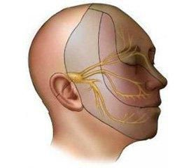 Невралгія трійчастого нерва 1 Херсон