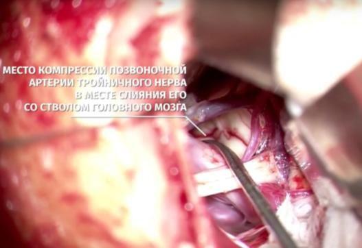Невралгія трійчастого нерва 3 Херсон