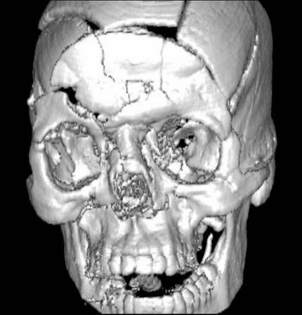 Ушиб головного мозга тяжелой степени, диффузное аксональное повреждение головного мозга 2 Херсон